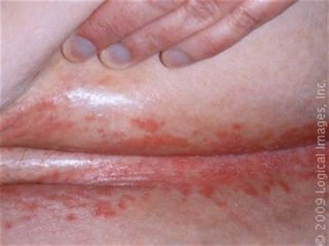 itchy skin rash after c section 72 best skin allergy remedies images on pinterest