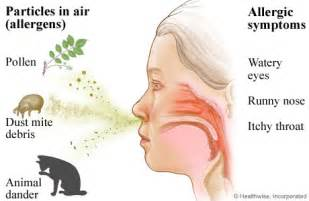 allergic rhinitis oh that itchy runny nose blind to bounds