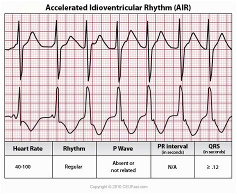 Accelerated Mba Vs Regular by Accelerated Ideoventricular Rhythm Rate Atrial Not