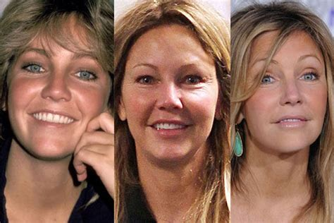 celebrity plastic surgery 24 before after pictures 2015 celebrity plastic surgery before after before and