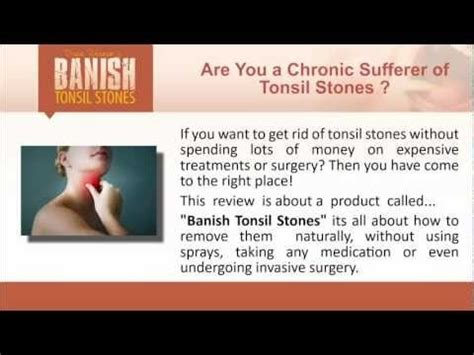 13 best images about tonsil stones care on