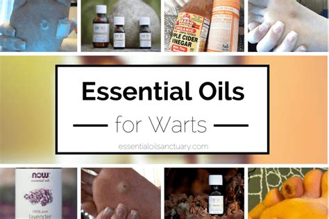 essential oils for tattoo removal diy wart removal on clublifeglobal