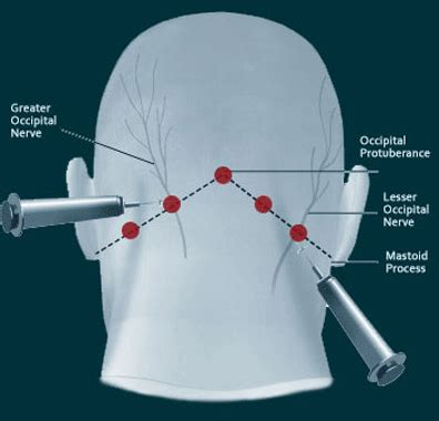 Blockers Location Occipital Nerve Blocks Complete Spine And Care