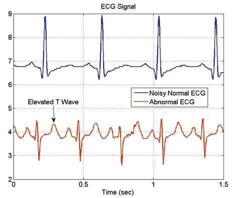 eeg pattern in math teaching medical instrumentation at the university of