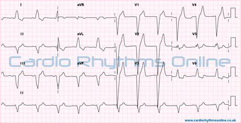 lbbb pattern cardio rhythms online ventricular conduction disturbances