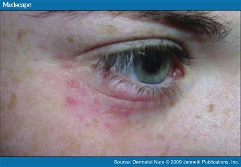 Haevy Metal Detox Rash by Heavy Metal Detox Rash Left Eye