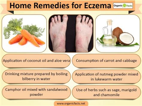 15 wonderful home remedies for eczema organic facts