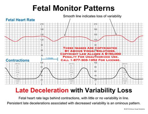heart monitor pattern medical exhibits demonstrative aids illustrations and models