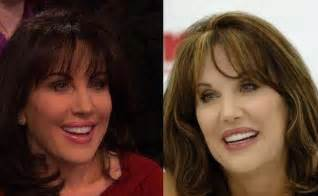Pin did robin mcgraw have plastic surgery on pinterest