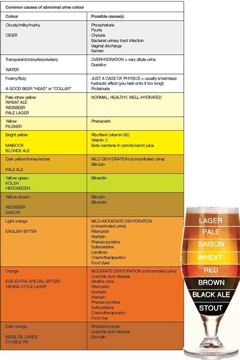 color of urine urine color chart infection www pixshark images