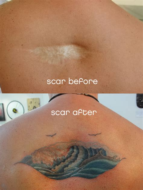 tattoo cover up for scars scar tattoo cover up tattoo picture at checkoutmyink com