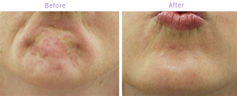 remedy fr cleft chin botox for dimpled chin lk aesthetics