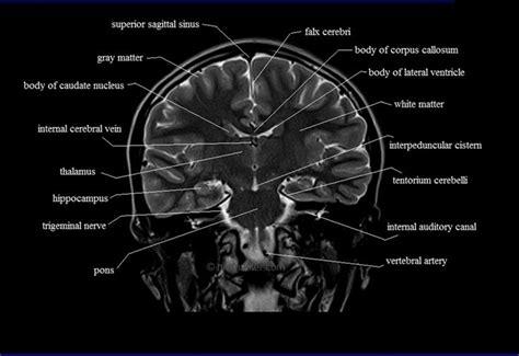 ct brain cross sectional anatomy brain anatomy mri coronal brain anatomy free mri cross