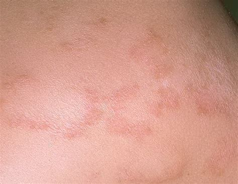 christmas tree virus rash pityriasis rosea related keywords pityriasis rosea keywords keywordsking