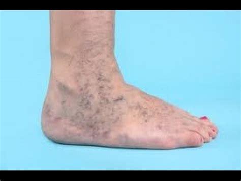 imagenes de manchas rojas en los pies ulceras varicosas en las piernas tratamiento natural