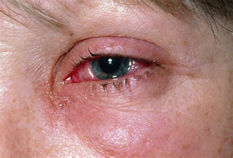 Can Conjunctivitis Cause Blindness conjunctivitis it can get complicated