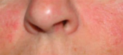 rashes lupus symptoms in women lupus rash pictures symptoms causes treatment