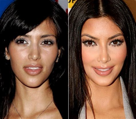 kim kardashian and every celebrity looked like a couch which celebrities had the best plastic surgeries find out