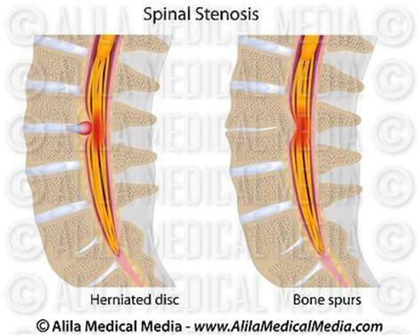 spinal stenosis diagram alila media spine anatomy diagram