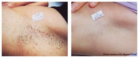 electrolysis brazilian dermatology cosmetic laser center medical spa boca raton