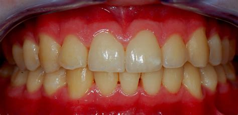 gingivitis treatment a remedy for gingivitis sores and toothache