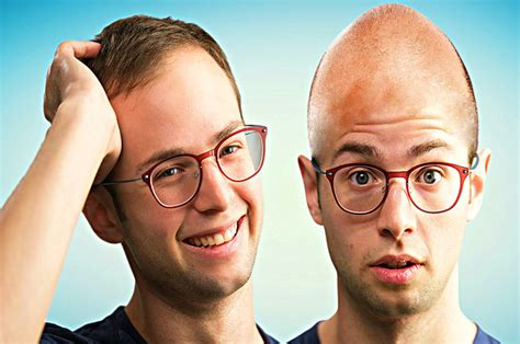 balding in my late 30 these are the actual ways you can stop losing your hair