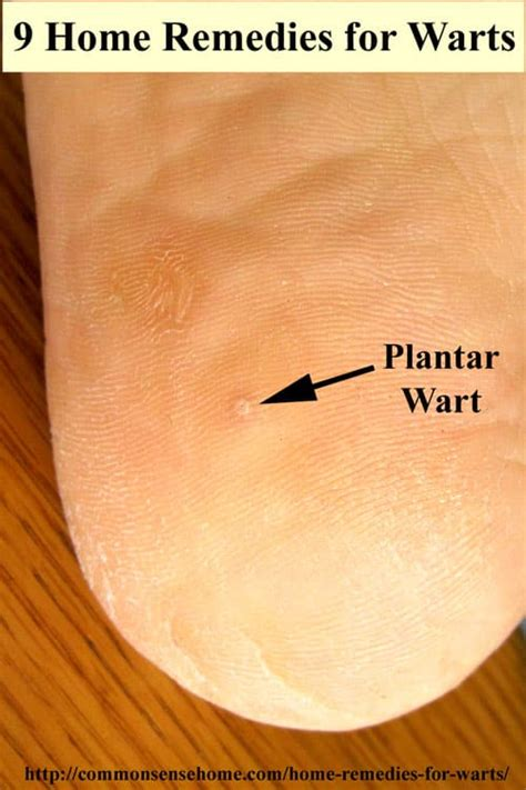 Cure For Planters Wart by Pedicure Tools Ulta Home Remedies For Plantar Warts On