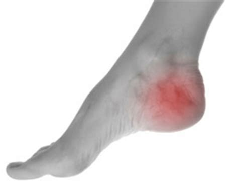 Interior Ankle Sprain by Inner Ankle After Running