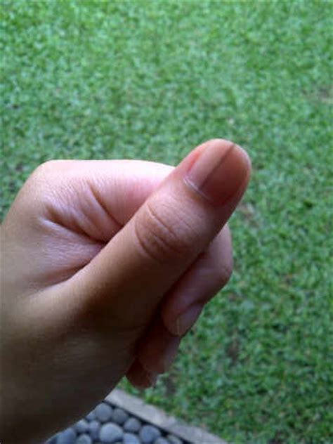 dark line on fingernail dark vertical line on thumbnail photo 1 the nail for you