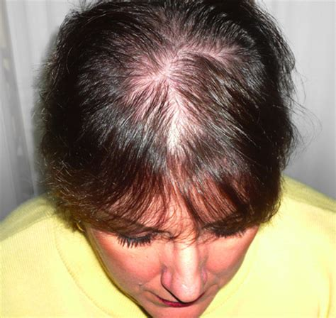 woman with extremely thinning hair hair product tips reviews the 3 biggest mistakes