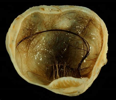 pilonidal cyst teeth potworniak wikipedia wolna encyklopedia