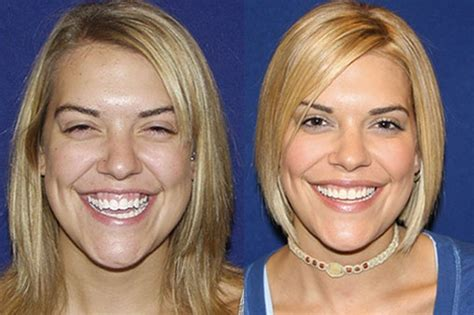 orthognathic surgery age 50 and over 11 best images about gummy smile correction on pinterest