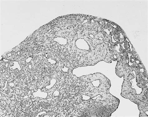 Liver Hemangioma Pathology Outlines by Pathology Outlines Hemangioma