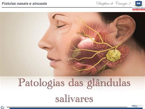 glandula submaxilar anatomia patologias das gl 226 ndulas salivares 2
