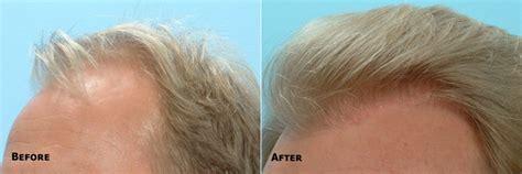 hair transplant orlando hair restoration orlando best results 171 hair transplant technicians orlando fl