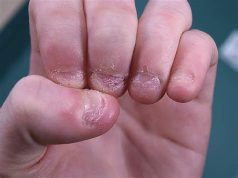 chewing nails best way to stop biting nails trusper