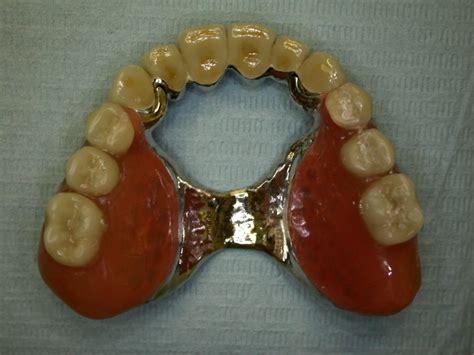 quanto costa una dentiera mobile protesi mobile scheletrati e dentiere dentista in rete