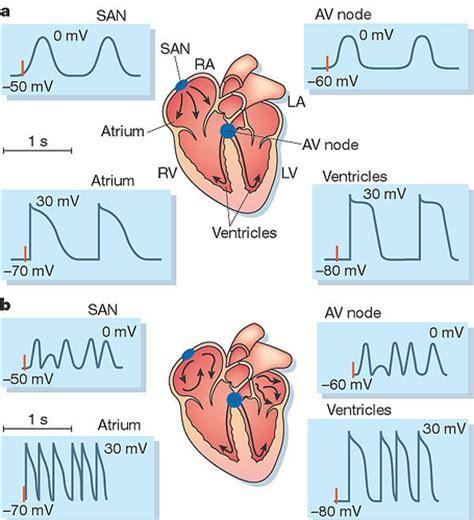 atrial fibrillation diagram myocardial infarction name atrial fibrillation flickr