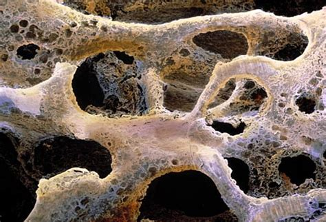 pictures of bones pictures of bone metastasis when cancer spreads to your bones