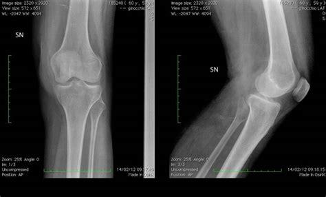 dolore ginocchio interno corsa distorsione al ginocchio dolori alle gambe contusione
