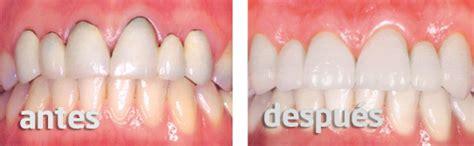 fundas zirconio problemas 191 se pueden cambiar las coronas dentales antiguas