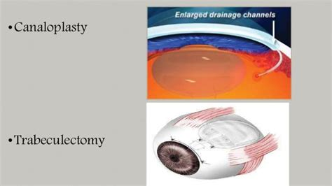 diode laser cycloablation glaucoma and cataract include treatment