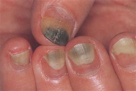Are Uv Nail Ls Dangerous by Gel Manicures Safe Or Dangerous Siowfa15 Science In