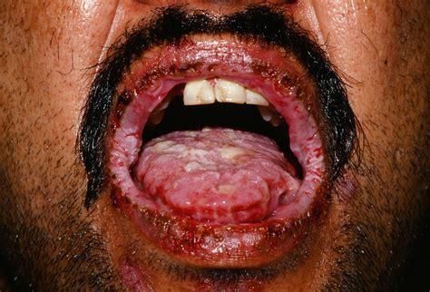 oral mucosa