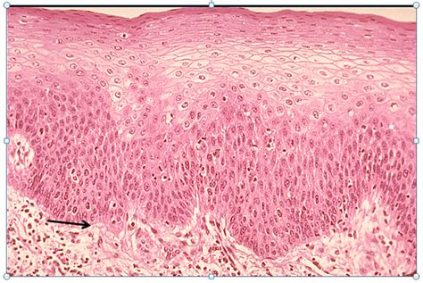 basement membrane of skin histology practice bl anatomy physiology with