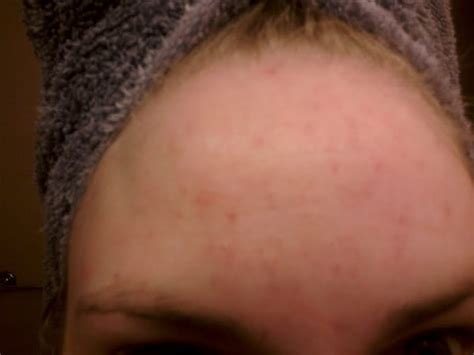 Acne Chin Detox by The Cleansing Method Before And After Photos