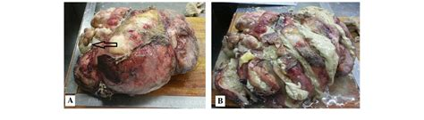 tumor with hair and teeth images an uncommon recurrence of an immature teratoma a report