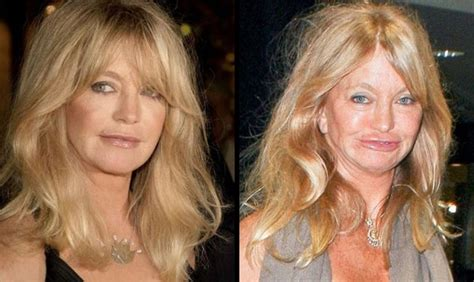 plastic surgery gone wrong celebrity plastic surgery gone wrong