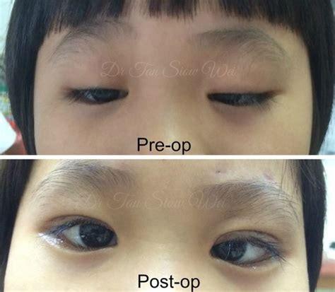 eye specialist indah specialist eye centre eye specialist in johor bahru