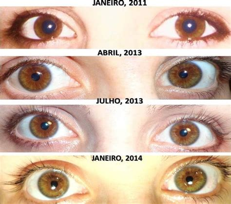 changing eye color your can reveal your inner health your knows
